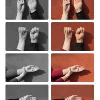 Día Europeo del síndrome de Marfan